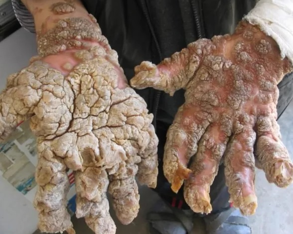 Skin Disease Epidermodysplasia Verruciformis