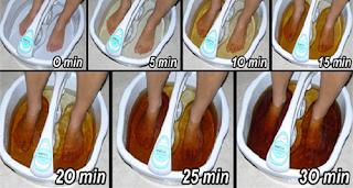 Rendam Kaki Anda Ke Dalam Air Garam Hangat Selama 30 Menit
