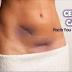 Apprenez à connaître le cancer du col de l'utérus - Traitement, signes et symptômes du cancer du col de l'utérus.