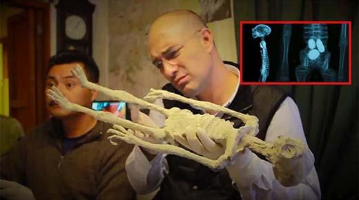Momias con tres dedos en cada mano encontradas en Perú se cree que son reptiles alienígenas