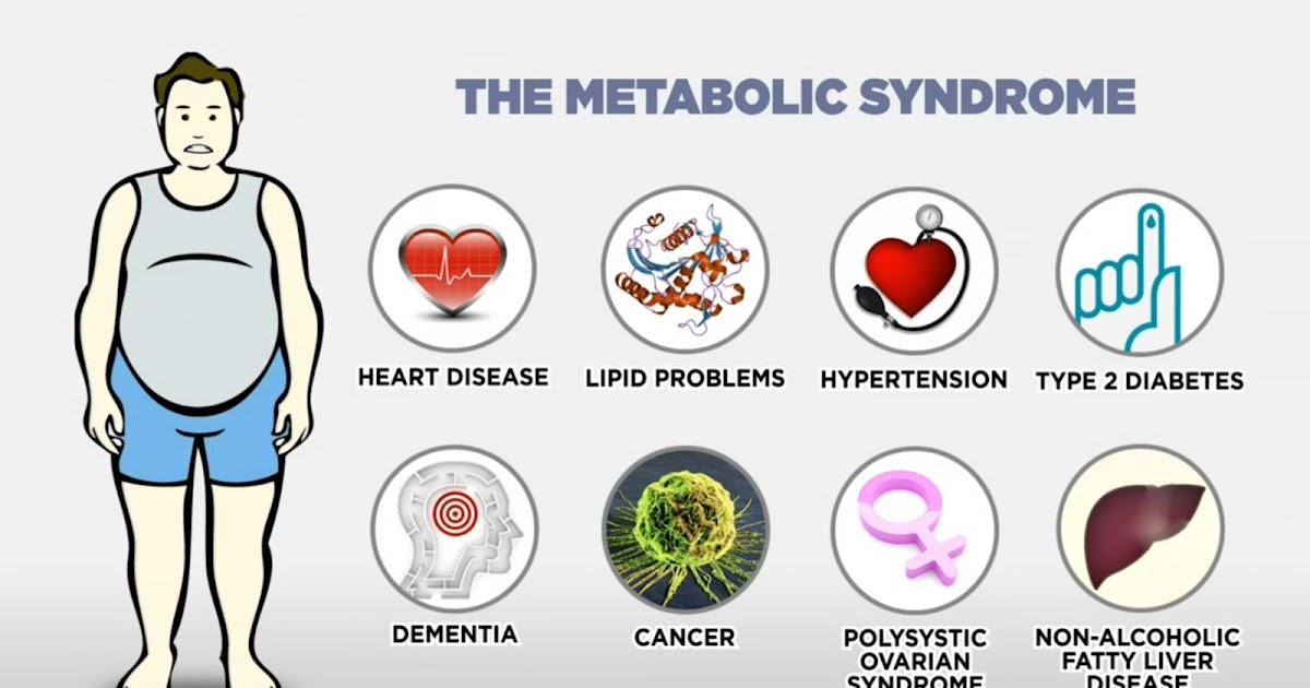 sindromul metabolic de pierdere în greutate