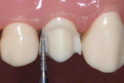 ở đâu bọc răng sứ trả góp -6