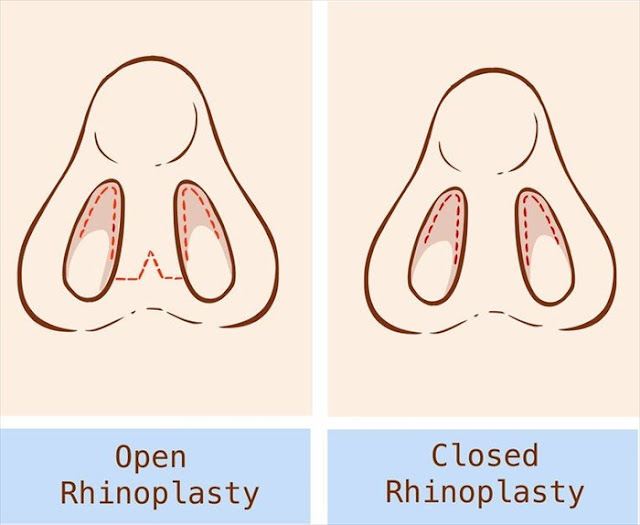 open rhinoplasty & closed rhinoplasty surgery in delhi