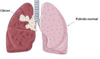 Câncer de Pulmão Imagem 02