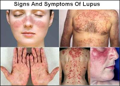 http://www.pusatmedik.org/2016/12/lupus-definisi-gejala-penyebab-dan-pengobatan-serta-penanganan-penyakit-lupus-menurut-ilmu-kedokteran.html