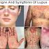 Lupus Definisi Gejala Penyebab Dan Pengobatan Serta Penanganan Penyakit Lupus Menurut Ilmu Kedokteran