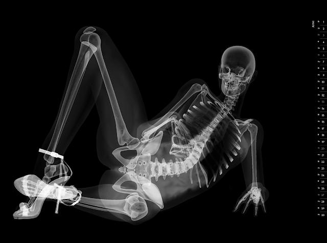Eizo nude X-ray calender 2010 june