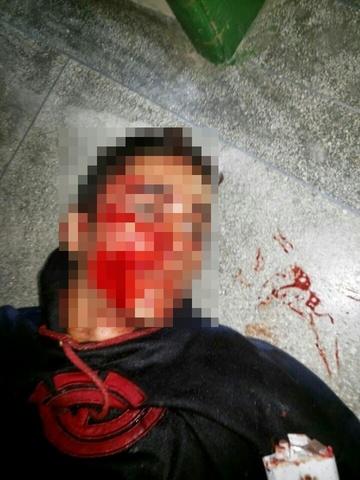 Homem leva tiro rosto em Itaiópolis