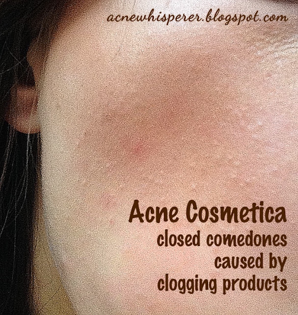 Acne Cosmetica - breakouts caused by pore clogging makeup and skincare