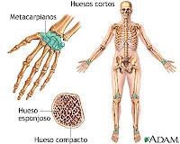 que es cancer de huesos)