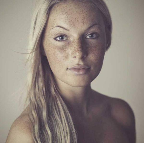 girl Freckled face