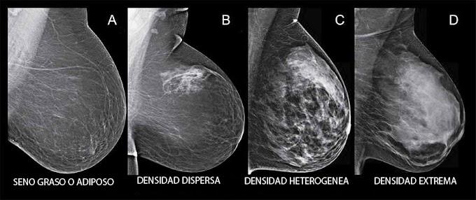 ¿Qué significa tener mamas densas?