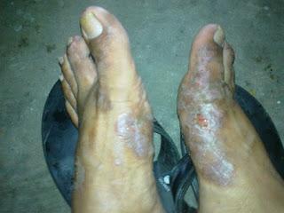 Obat gatal di kaki Warna lebih hitam dan tebal