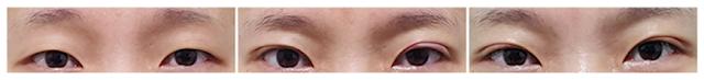 Korean Best Eye Plastic Surgery, Eye Doll Line Double Eyelid Surgery