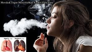 Rokok Bukan Salah Satu Penyebab Kanker Paru Paru