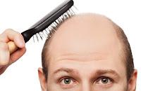Saçları Dökülen Erkeklere Doktorlar Saç Ekimi Öneriyormu