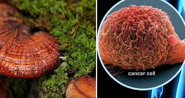 9 Amazing Cancer Cures That You Won't Hear From Your Doctor - See more at: http://healthydefinition.com/cancer-cures-that-you-wont-hear-from-your-doctor/#sthash.Pds2iN0T.dpuf