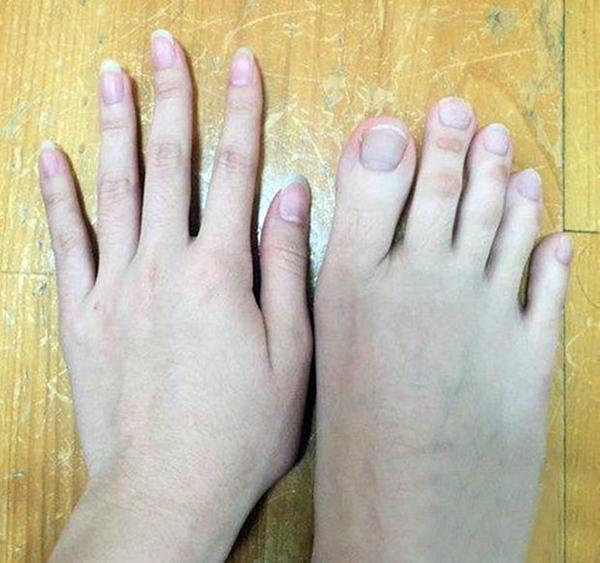 بالصور.. فتاة من تايوان تحير الجميع بأصابع قدميها!