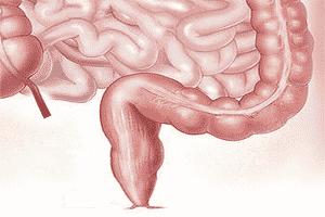 Vista del intestino grueso en la zona colorrectal