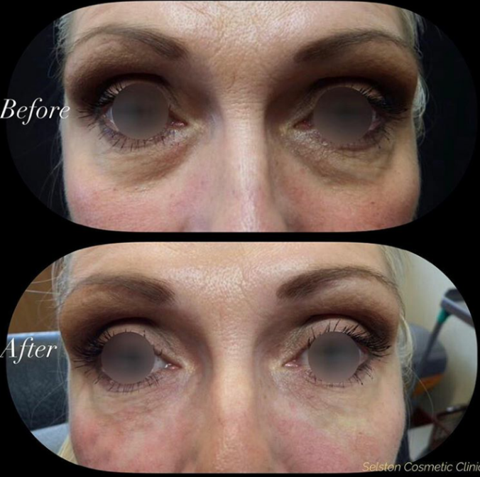 Selston Cosmetic Clinic: Dermal Filler Injections for Eye ...