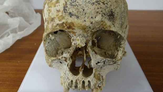 El cráneo de «Ava» es redondo y pequeño, como si hubiera sido vendado durante el crecimiento o a causa de su herencia genética.
