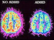 ADHD Study
