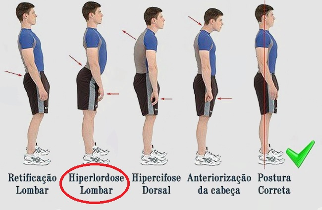 Como perder a barriga em cinco minutos mantendo uma boa postura