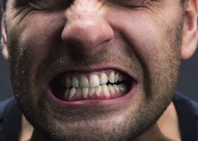 Berbagai Penyakit Serius Akibat Gangguan Pada Mulut Dan Gigi