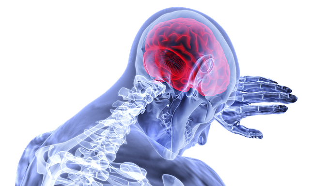 How to Know 10 Signs of Brain Tumors?