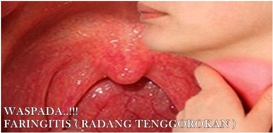 Obat Herbal Penyakit Radang Tenggorokan