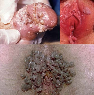 Penyakit kutil genital - de Nature
