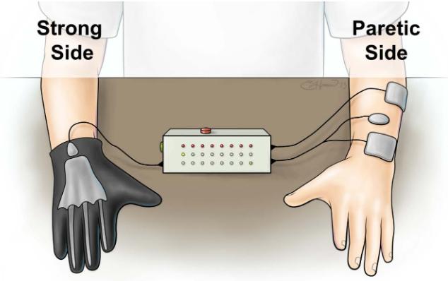 図:対側制御FES