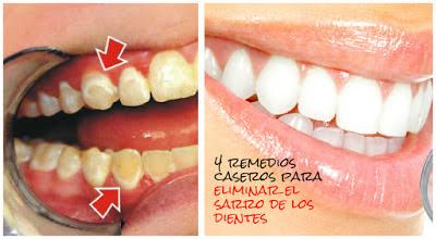 Sarro-dientes