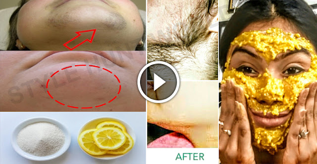 DIY - How To Remove Facial Hair Within 1 Hour