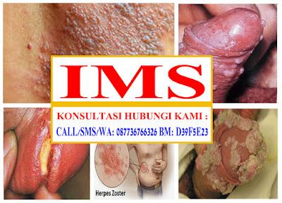 Infeksi Menular Seksual Bisakah disembuhkan
