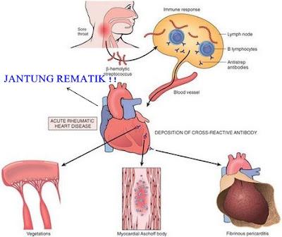 Penyebab Demam Rematik dan Jantung Rematik Serta Pengobatannya