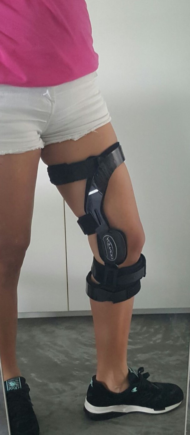 Brace Your Eyes The Most Beautiful Women On Earth: Running Solutions: How Effective Is Your Knee Brace?