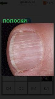 1100 слов видны полоски на ногте пальца 33 уровень