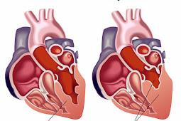 Non Pharmacology Congestive Heart Failure Disease