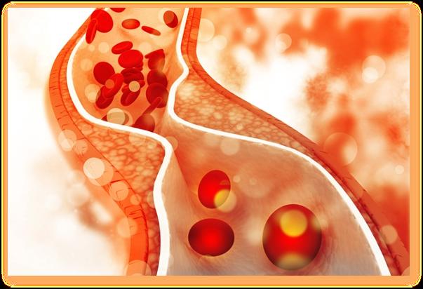 Ce sunt, ce rol au si de ce trebuie sa ne ingrijoreze excesul de trigliceride?