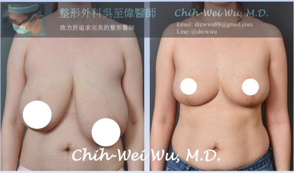 i罩杯縮胸手術案例