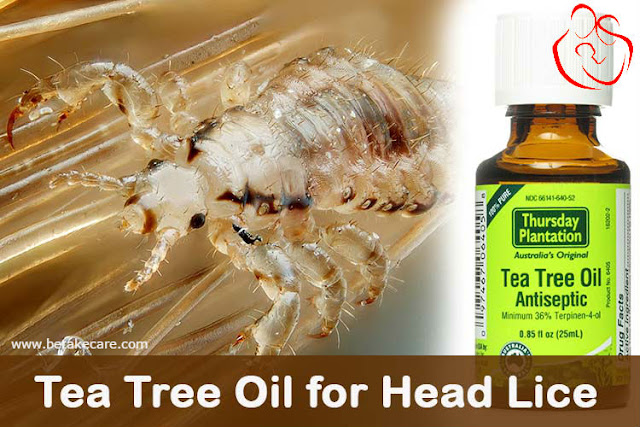 Tea Tree Oil used in lice
