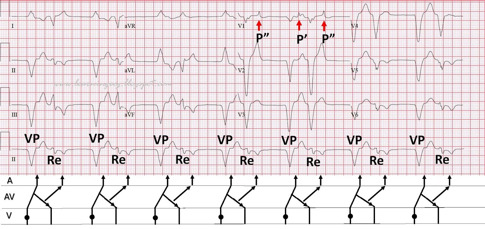 Ecg rhythms reciprocal beating in a paced rhythm figure 2 ladder diagram ccuart Choice Image