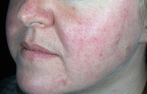 Como eliminar rosacea de la cara