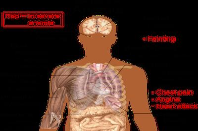 symptoms-of-anemia