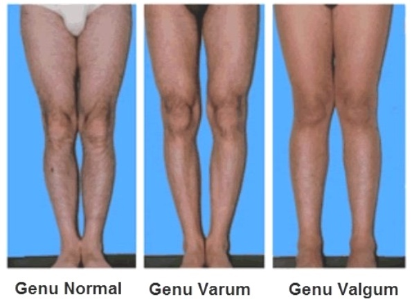 Genu valgum or Knock Knees