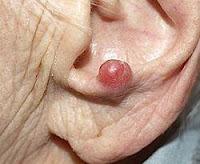 Kanker kulit – Gejala, Penyebab, Pengobatan dan Pencegahan - karsinoma sel merkel