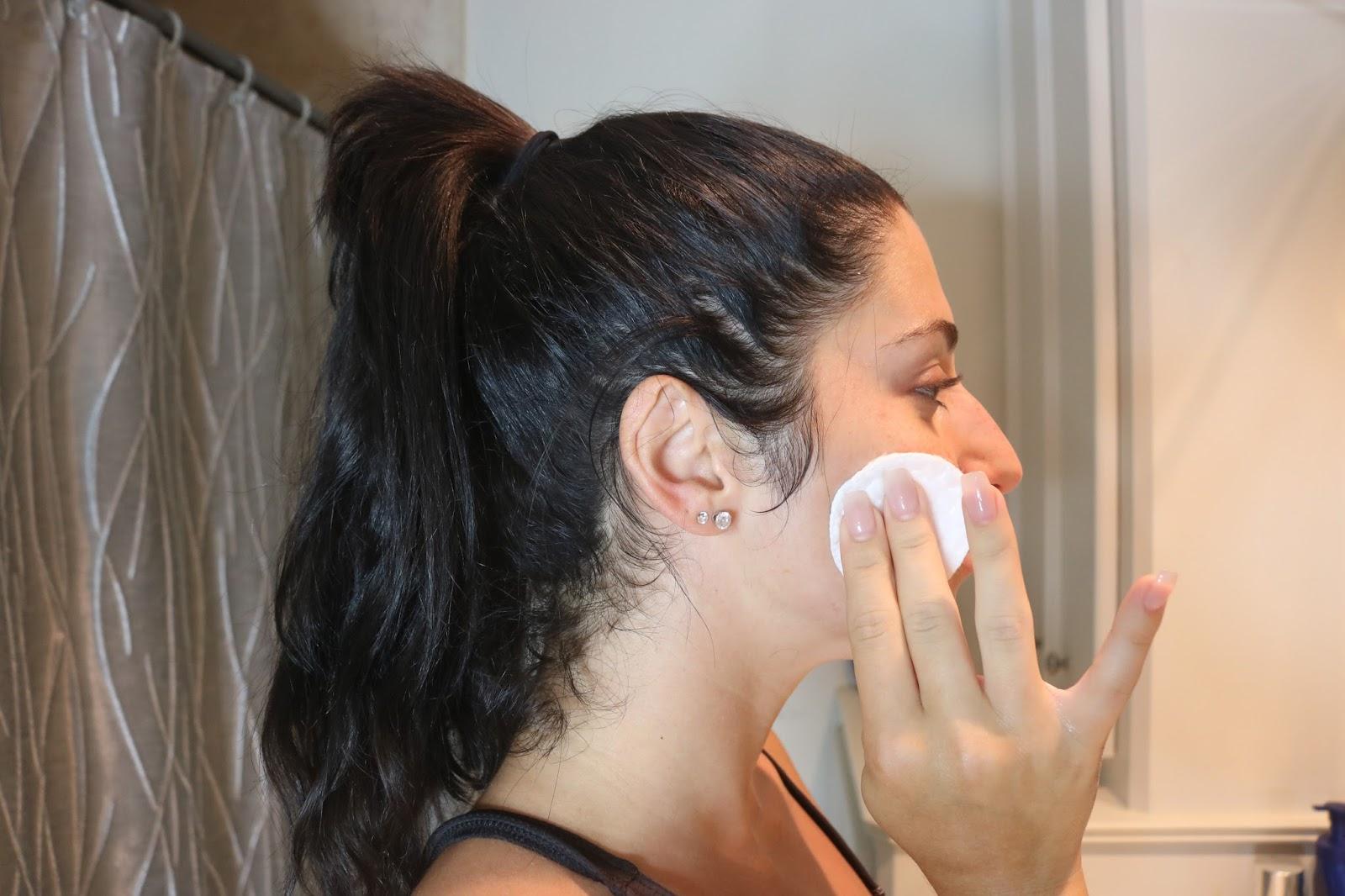toner for sensitive skin acne