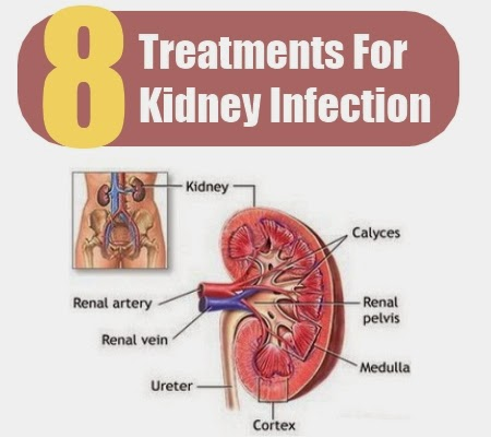8 Treatments For Kidney Infection ~ Mzizi Mkavu