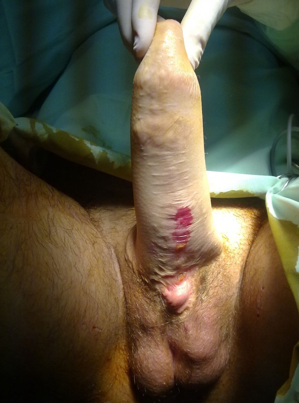 Gender reassignment surgery female to male post op-4387